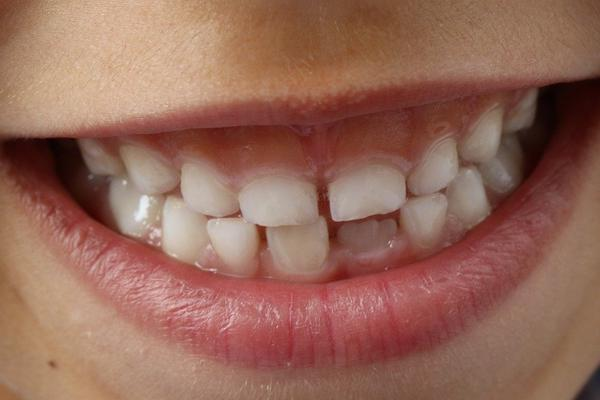 Tips for soothing Sensitive Teeth