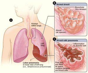 Natural remedies for Pneumonia