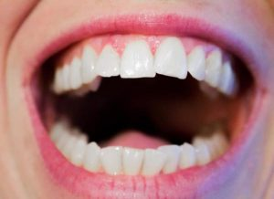 Diseases revealed by your tongue color and texture