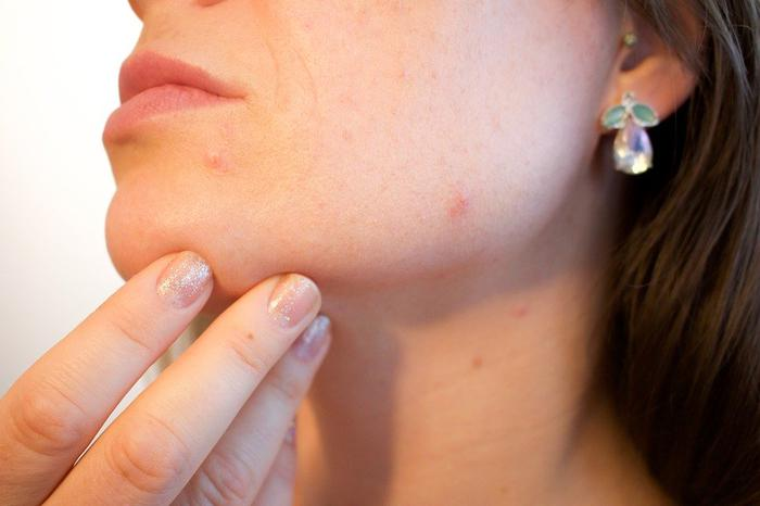 Easy ways to get rid of red spots on skin