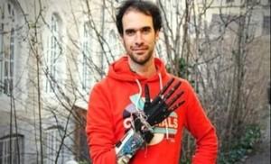 Prosthetic arm uses brain signal