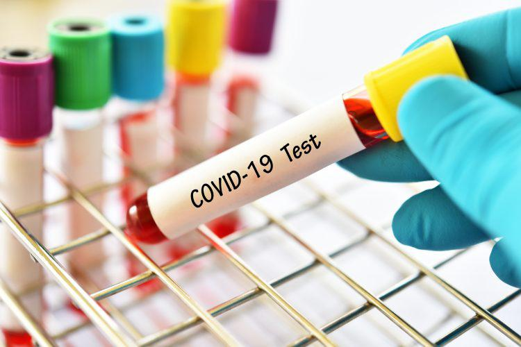 Low cost PCR kits to detect COVID-19